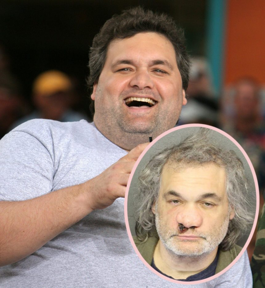 Comedian Artie Lange Unrecognizable In Bloody, Disturbing