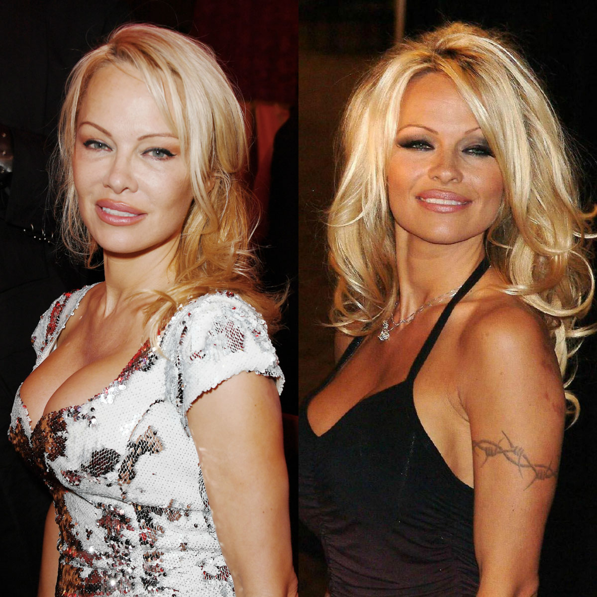 Pamela Anderson removed her arm tattoo