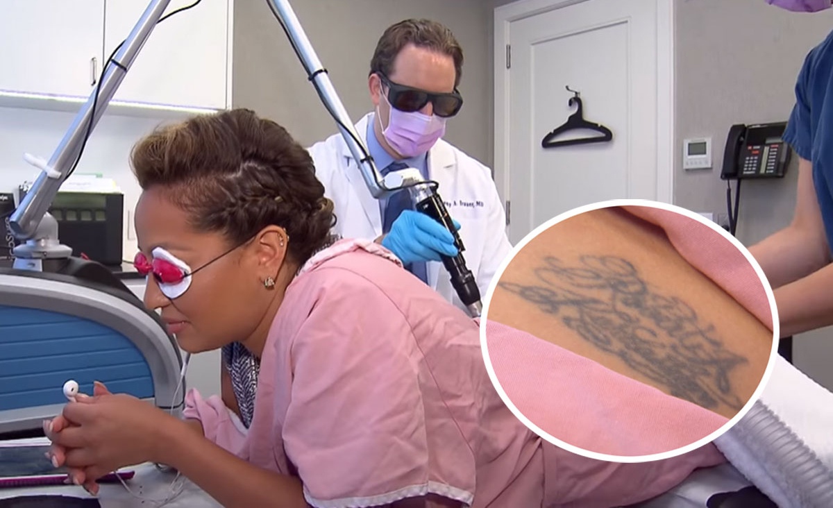 Adrienne Bailon removes her tattoo